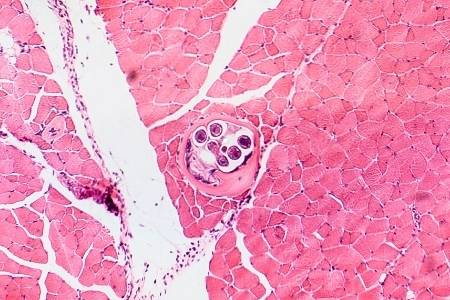 Roundworms in humans